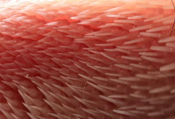 A close-up photo shows the surface of a cat's tongue with its papillae angled back. (AP)