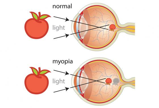 With myopia the eyeball is longer, causing light to focus before it reaches the retina (back wall of the inside of the eye). (RB)