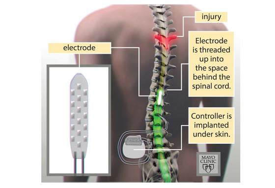 An electrode is threaded up through spaces in the vertebrae. A controller is implanted under the skin. (Mayo)